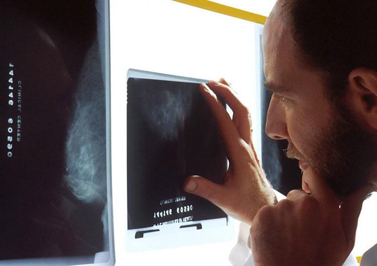 Cáncer de próstata: uno de los más mortales y más frecuente en hombres